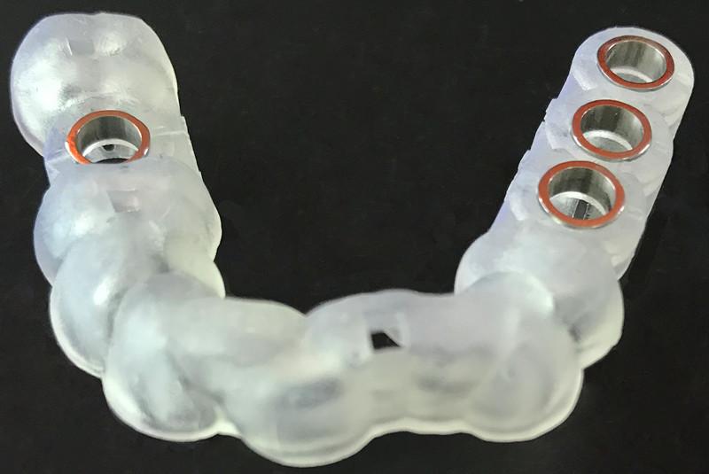 钛环_Famous数字化种植导板设计+3D打印技术-Shenzhen Mingyang denture Products Co ...
